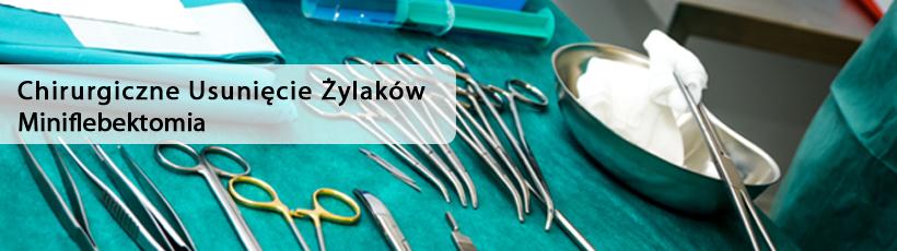 https://europejskiecentrumflebologii.pl/wp-content/uploads/Chirurgicyne-usunicie-zylaków.jpg