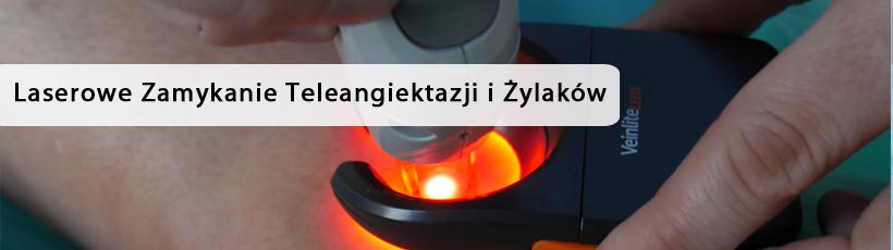https://europejskiecentrumflebologii.pl/wp-content/uploads/laserowe-zamykanie-teleangiektazji-i-zylakow-1.jpg