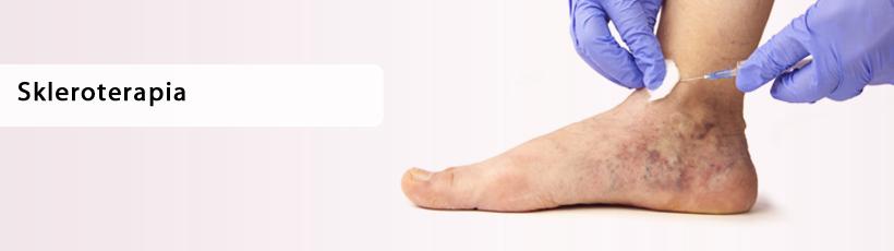 https://europejskiecentrumflebologii.pl/wp-content/uploads/skleroterapia-2.jpg